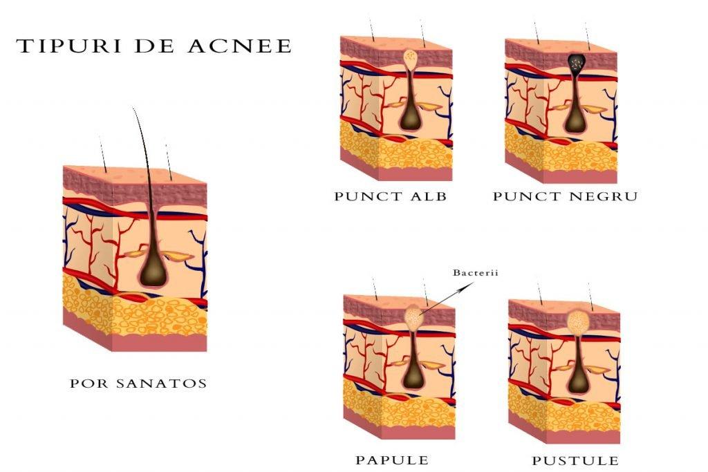 Dieta pentru acnee